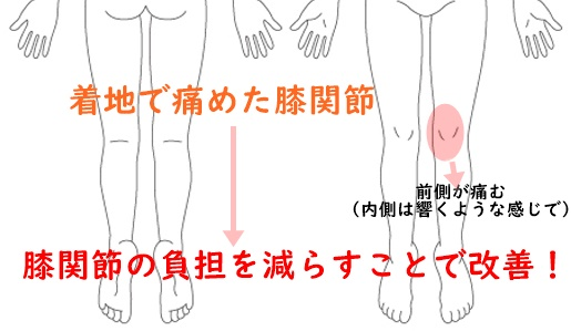 着地で痛めた膝関節