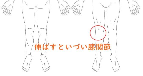 伸ばすと痛い膝関節