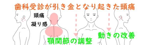 頭痛と顎関節の違和感