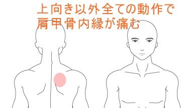 首凝りと肩甲骨内縁の痛み