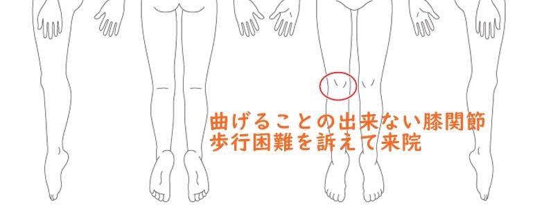 曲げることが出来ない膝関節・歩行困難
