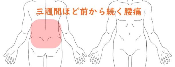 慢性腰痛 伸ばすと痛い