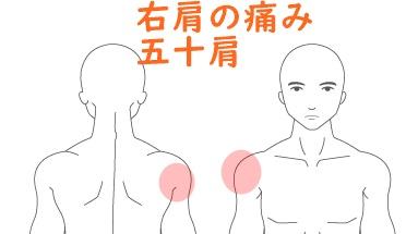 五十肩・肩の痛み