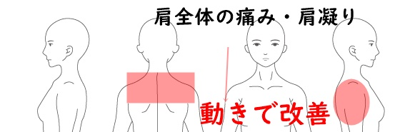 肩全体の痛み・肩こり