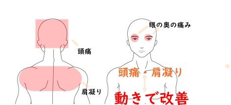 眼の奥の痛み・頭痛と肩こり