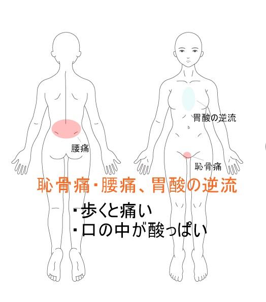 恥骨の痛みと胃酸の逆流