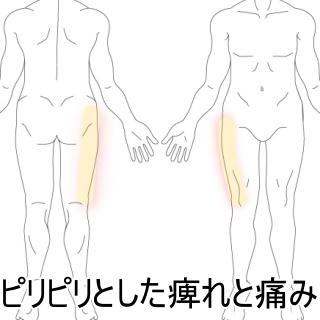 しびれ の 腰痛 足