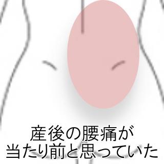 痛み 産後 背中 の