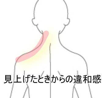 が 痛い 首