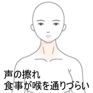 喉 の 違和感