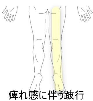 の 痺れ 両足