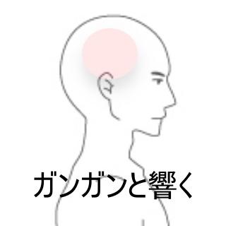 頭 痛い 側 部